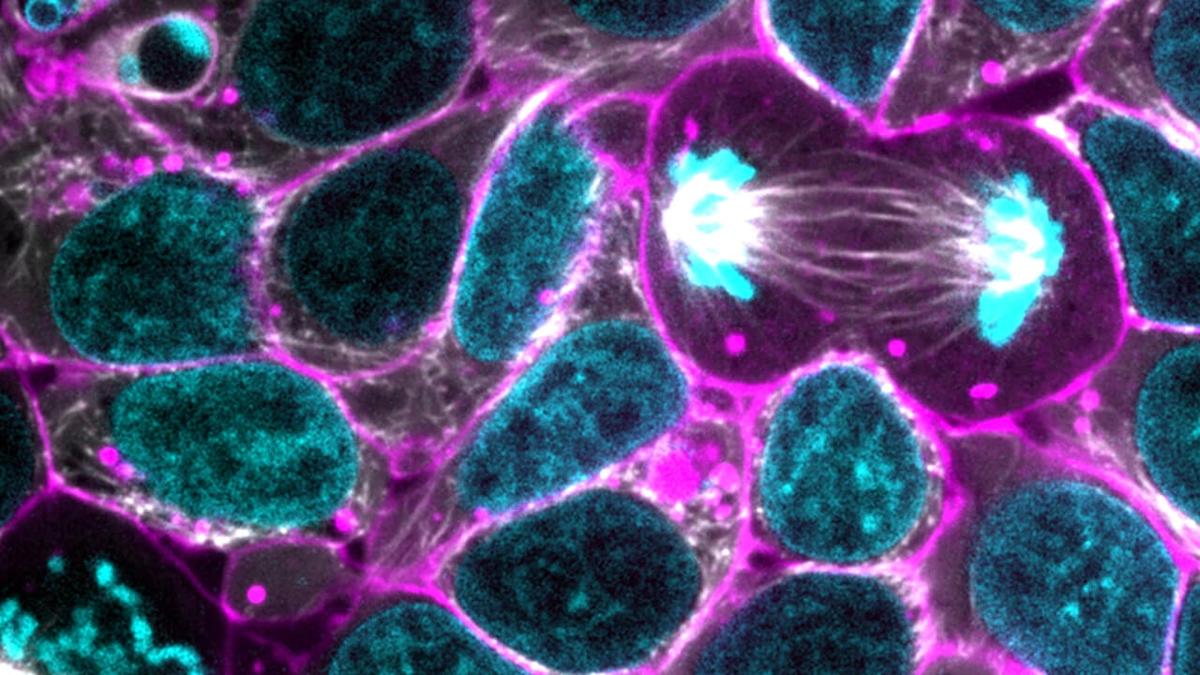 Tế bào gốc và triển vọng điều trị các bệnh thực quản