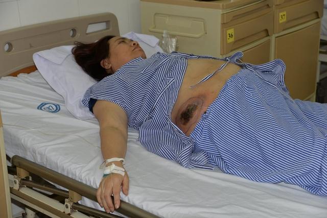 Bệnh nhân đái tháo đường suýt nhiễm trùng huyết vì dùng thuốc trôi nổi - Ảnh 1.