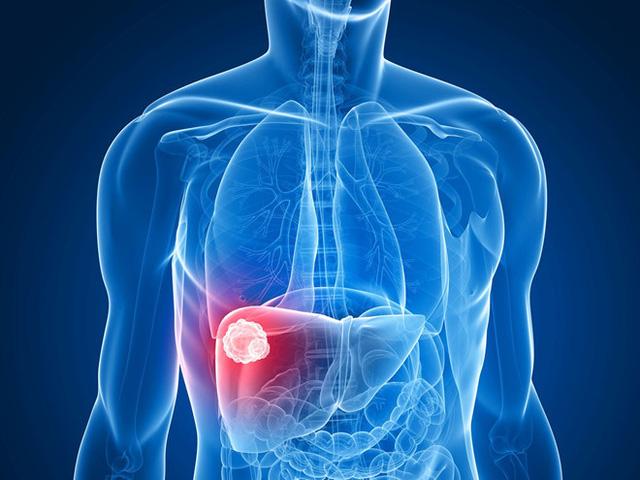 Điều trị ung thư gan bằng phương pháp nút tắc mạch - Ảnh 1.