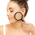 4 lý do dẫn đến nám da và cách khắc phục