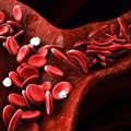 Thuốc mới điều trị bệnh hồng cầu lưỡi liềm