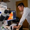 Úc giới thiệu loại gel từ tế bào gốc giúp điều trị tổn thương não bộ