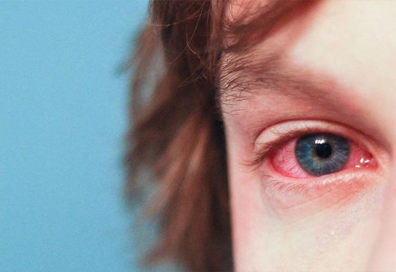 Chủ động phòng bệnh đau mắt đỏ mùa mưa