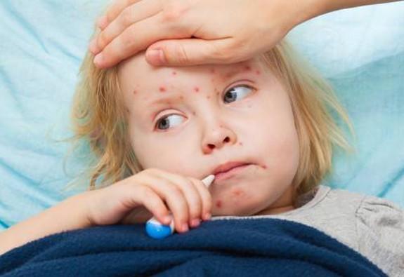 Dịch bệnh sởi có nguy cơ bùng phát cuối năm nay