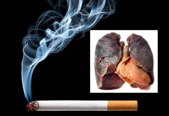 Hút một điếu thuốc giảm đi 6 phút cuộc sống