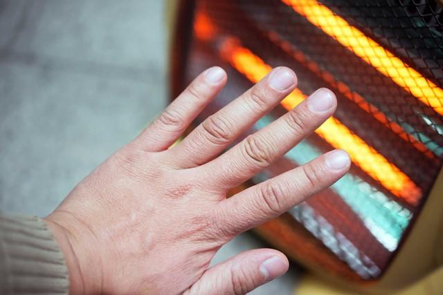 Tay chân buốt lạnh quanh năm, có thể do nguyên nhân bệnh lý - Ảnh 1.