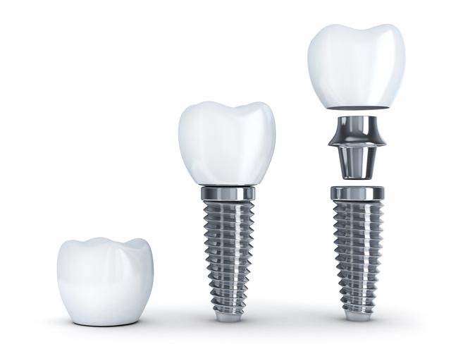 Trụ Implant nào tốt và phù hợp với bạn? - Ảnh 1.