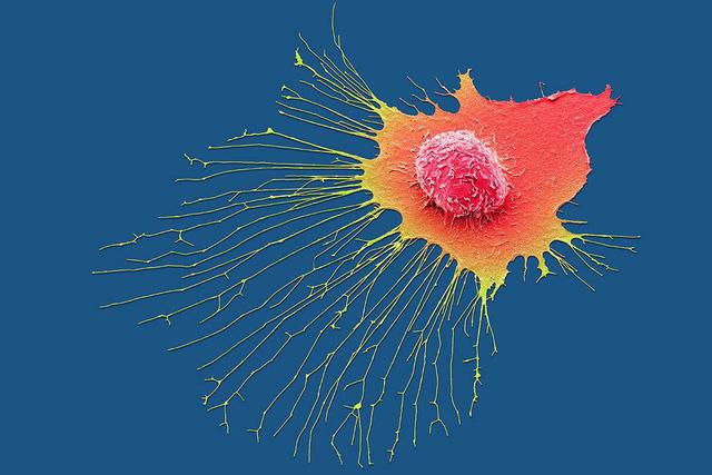 Trí tuệ nhân tạo giúp phát hiện và điều trị ung thư - Ảnh 2.