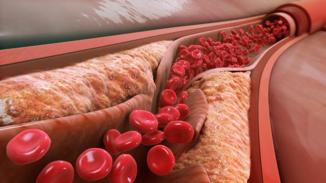Mỡ máu cao và những biến chứng khó lường - Ảnh 1.