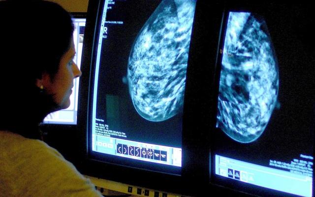 Phụ nữ trung niên giảm cân có thể ngăn ngừa nguy cơ ung thư vú - Ảnh 1.