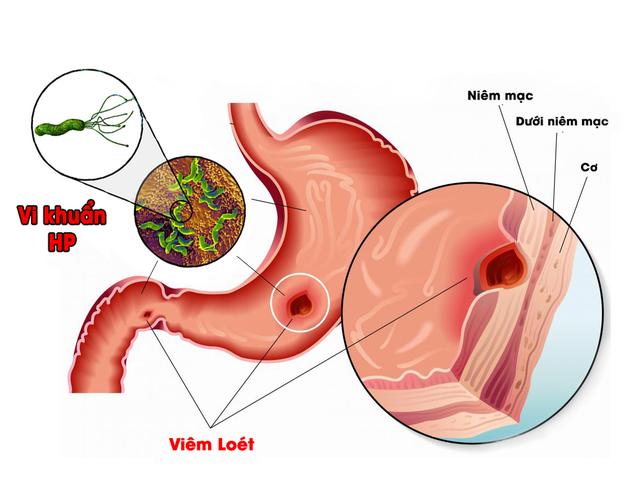 Những nguyên nhân gây đau dạ dày và mẹo trị bệnh hiệu quả - Ảnh 2.
