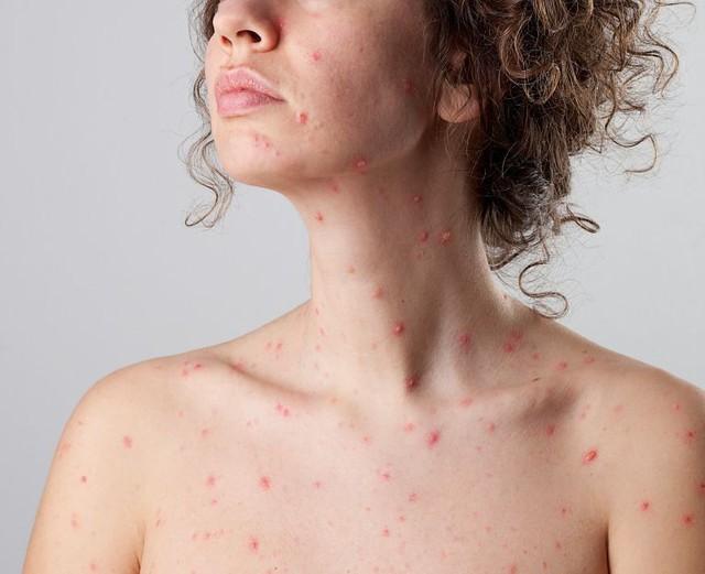 Những bệnh giao mùa thường gặp và cách phòng tránh - Ảnh 2.