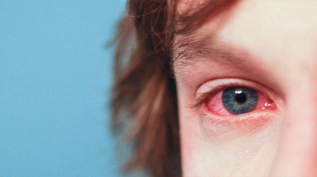 Điều trị bệnh viêm loét giác mạc - Ảnh 1.