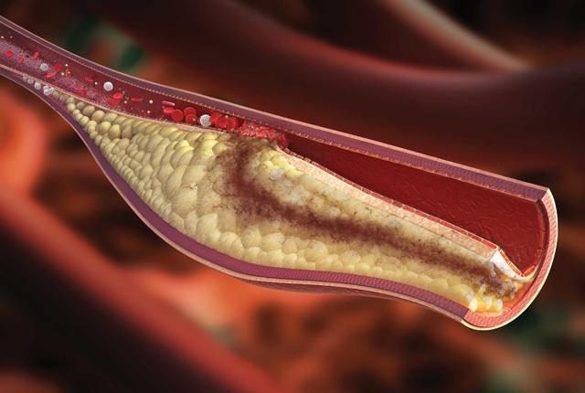 Báo động tỷ lệ người Việt Nam thừa cholesterol - Ảnh 1.