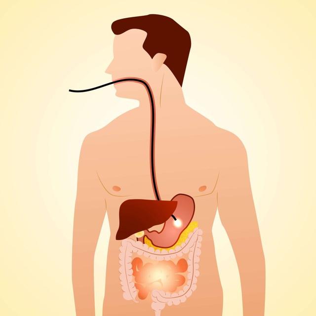 Ứng dụng AI vào điều trị bệnh lý tiêu hoá - Ảnh 1.