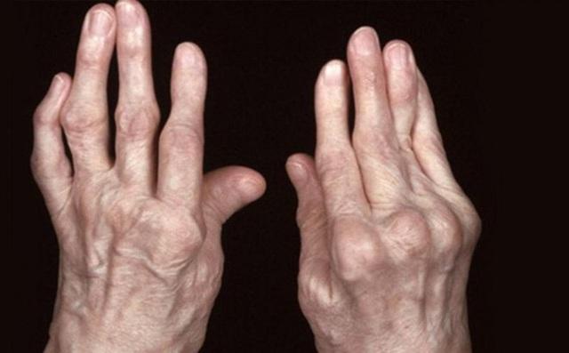 Phòng ngừa đau nhức xương khớp trong mùa lạnh - Ảnh 2.