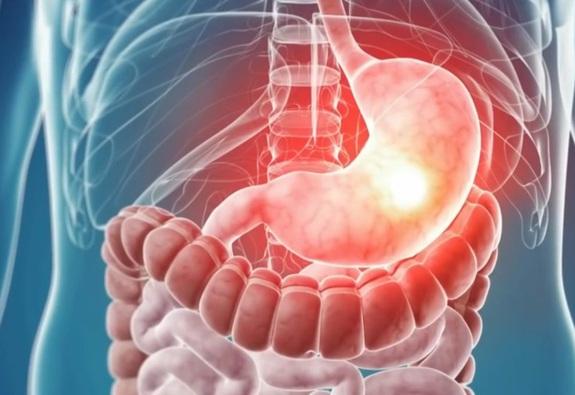Ứng dụng AI vào điều trị bệnh lý tiêu hoá